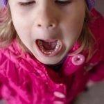 primary teeth eruption
